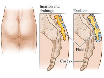 Anal Canal Anatomy: Gross Anatomy, Tissue, Nerves,
