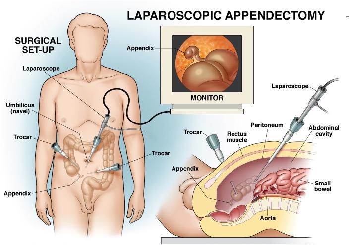 Risultati immagini per appendectomies